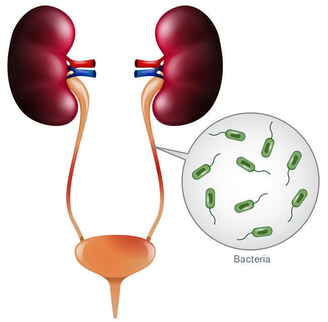 ITU, infección del tracto urinario y cistitis