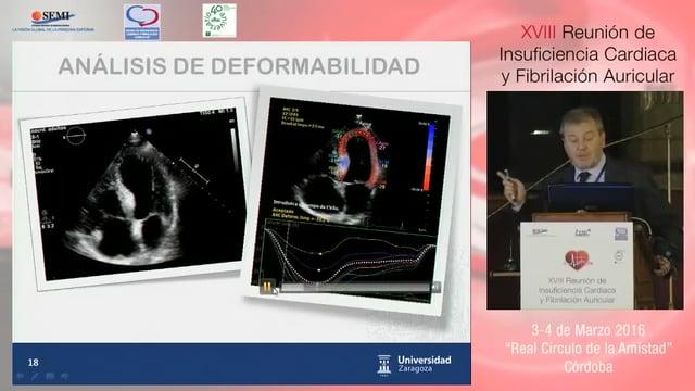 IC con FEVI preservada: nuevos aspectos fisiopatológicos